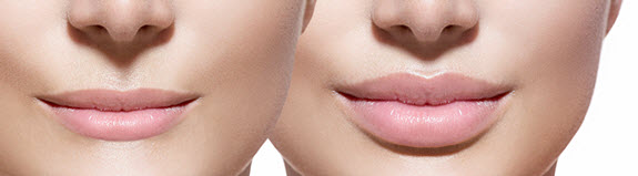 lip-enhancement-fairfield-ct