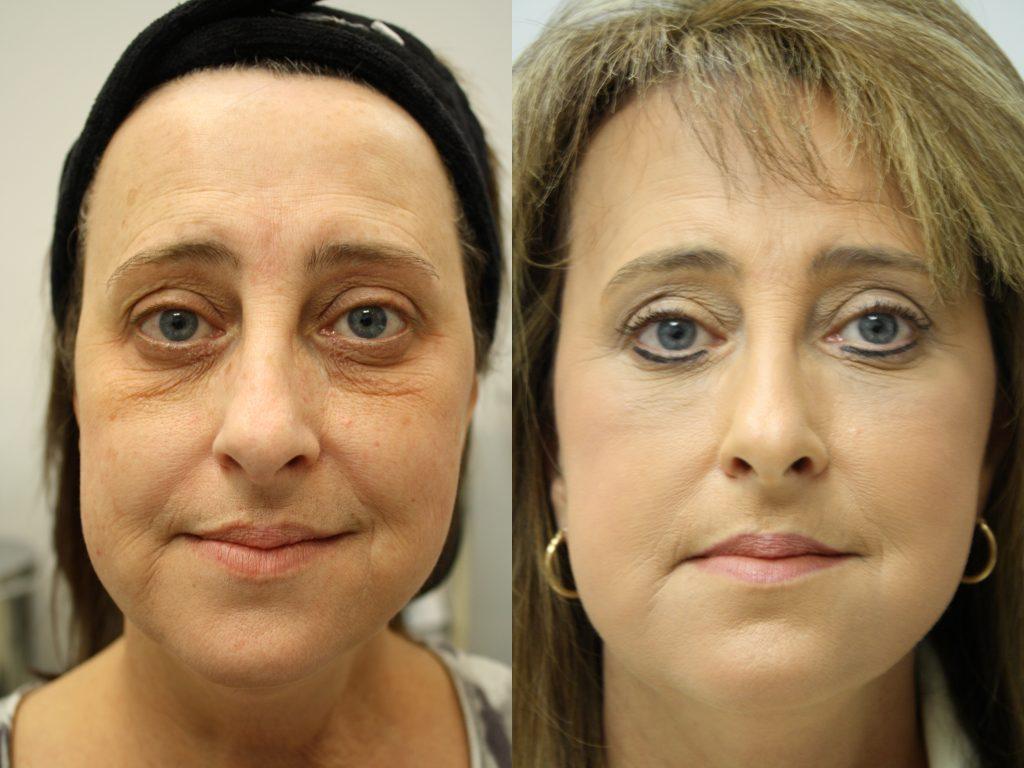 mixto  laser facial